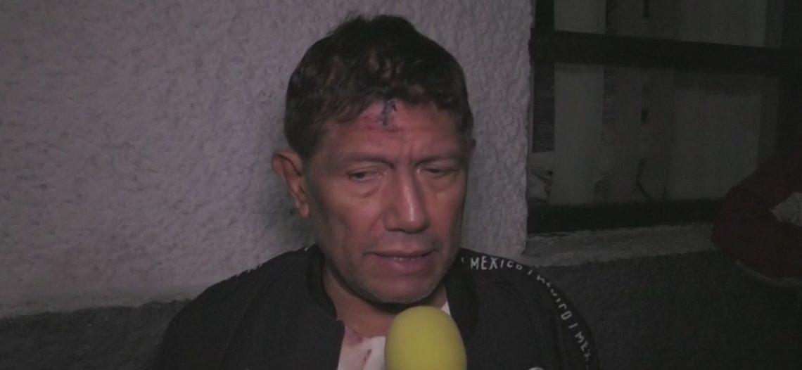 Me patearon, me abrieron la cabeza: Juan Osorio relata asalto